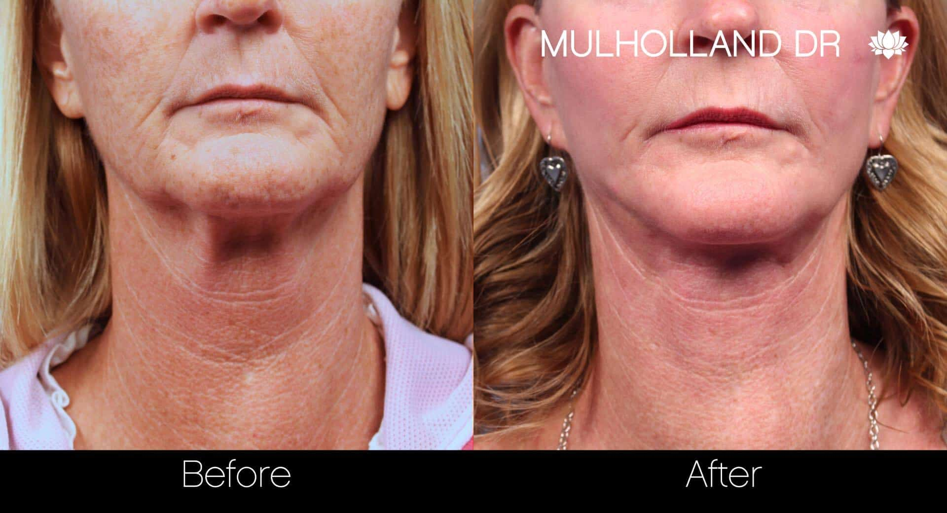 Neck Lift- Before and After Gallery – Photo 63