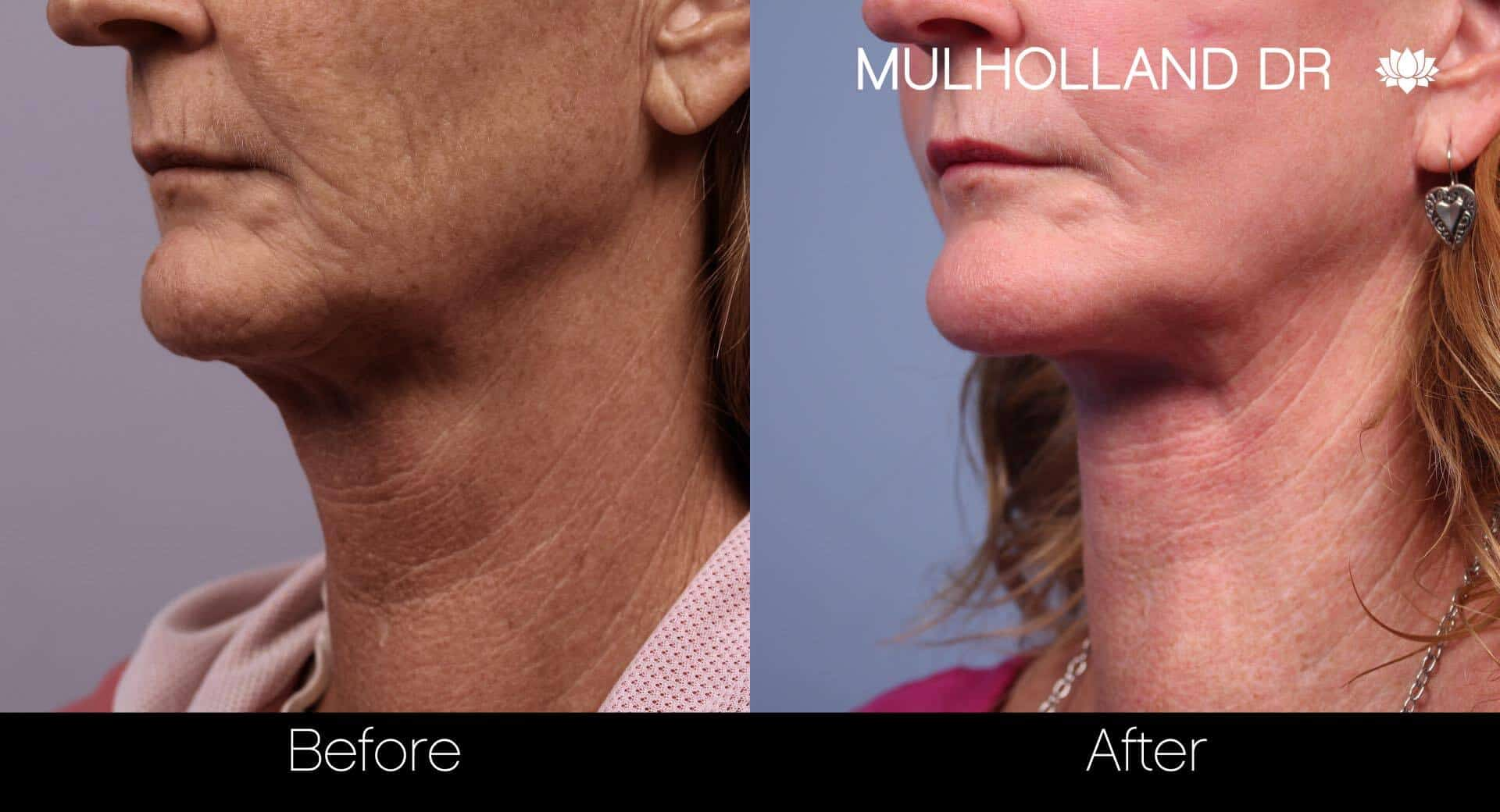 Neck Lift- Before and After Gallery – Photo 65