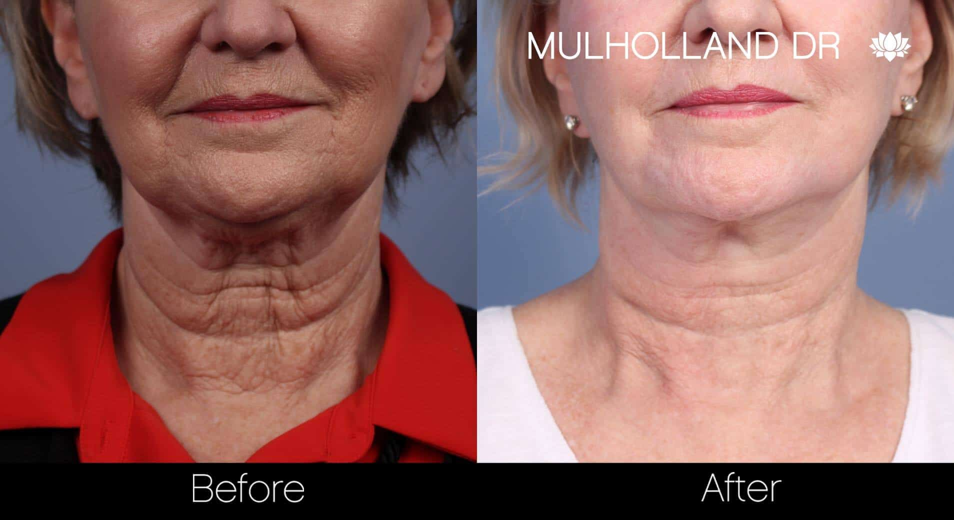 Neck Lift- Before and After Gallery – Photo 66