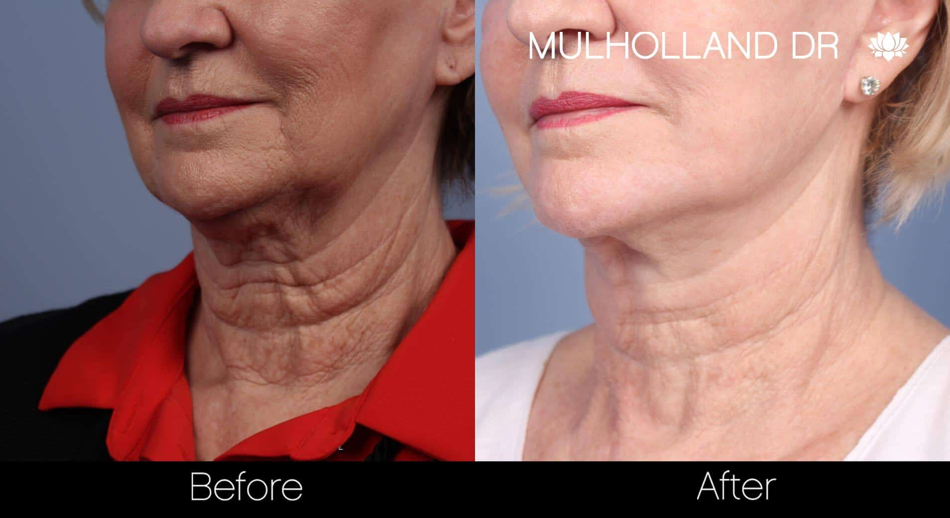 Neck Lift- Before and After Gallery – Photo 67