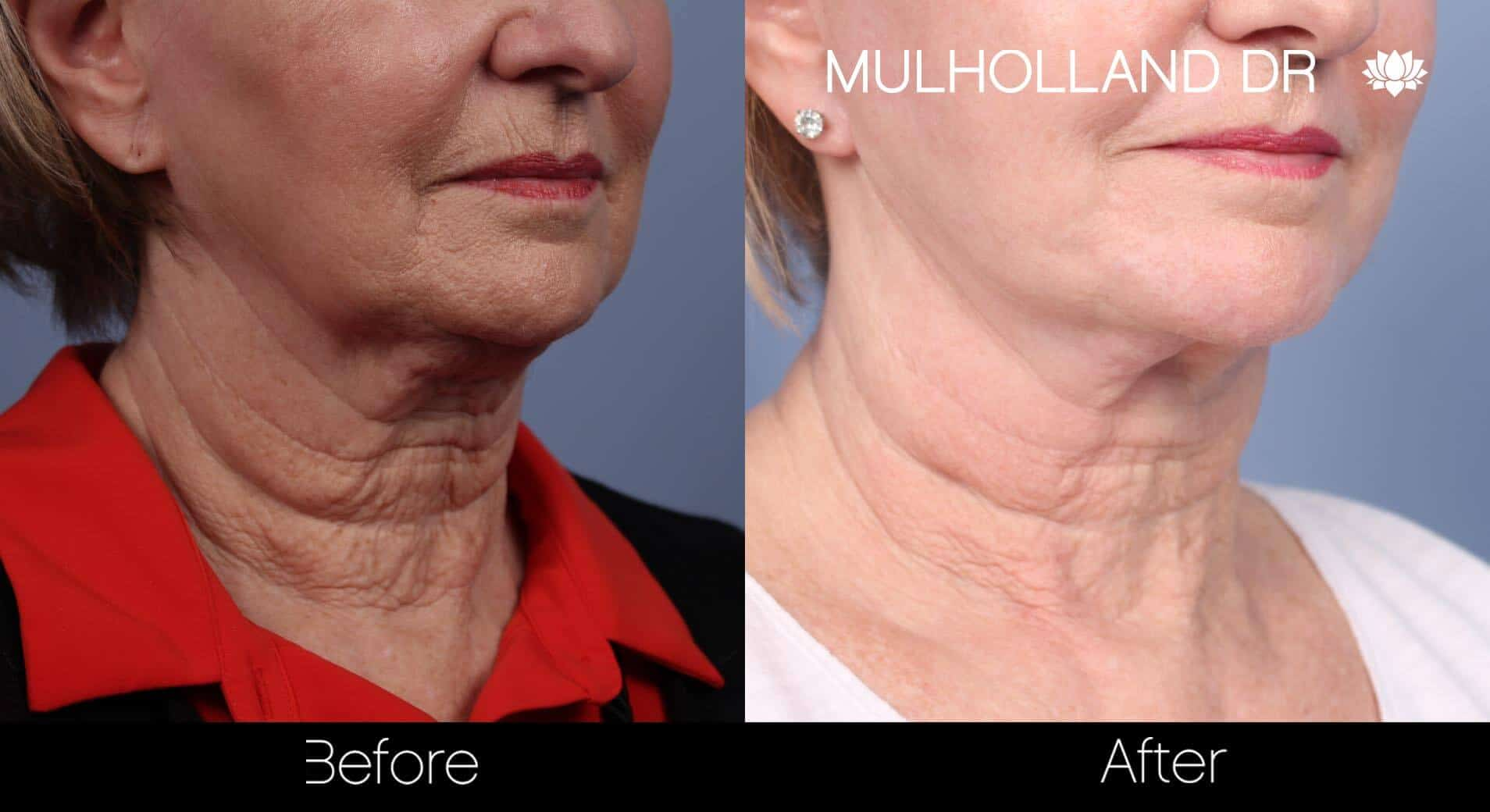 Neck Lift- Before and After Gallery – Photo 68