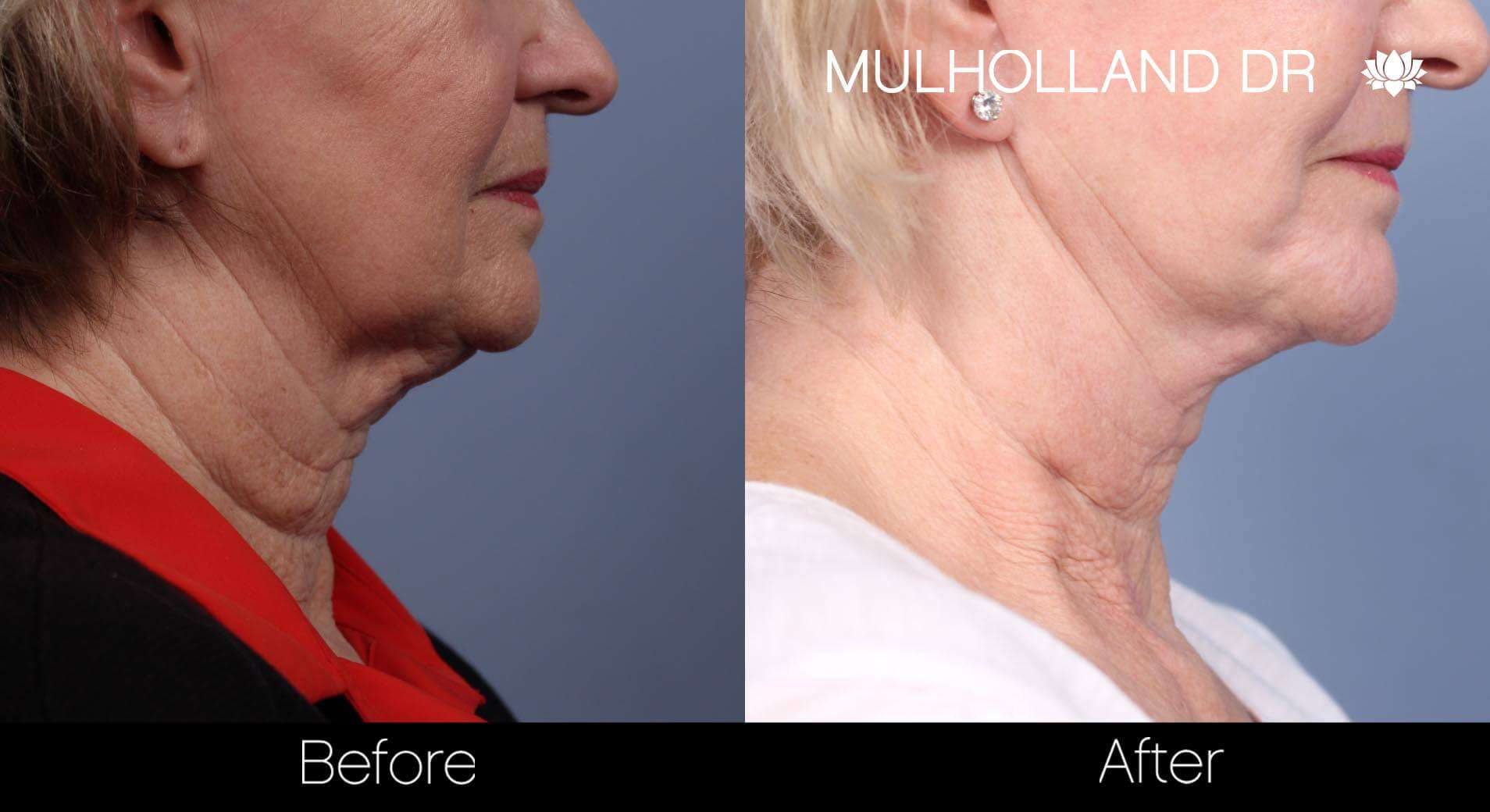 Neck Lift- Before and After Gallery – Photo 69