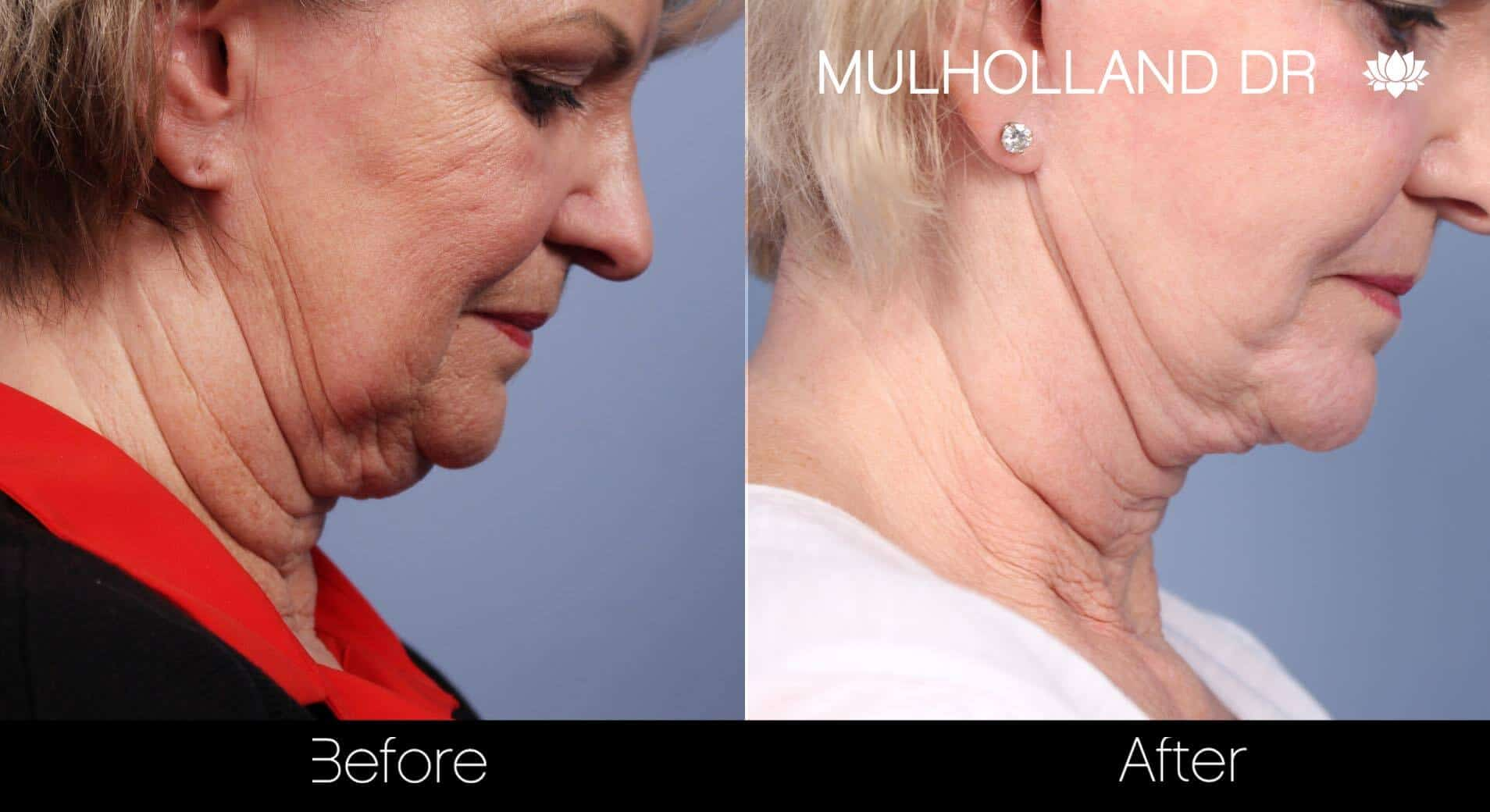Neck Lift- Before and After Gallery – Photo 70