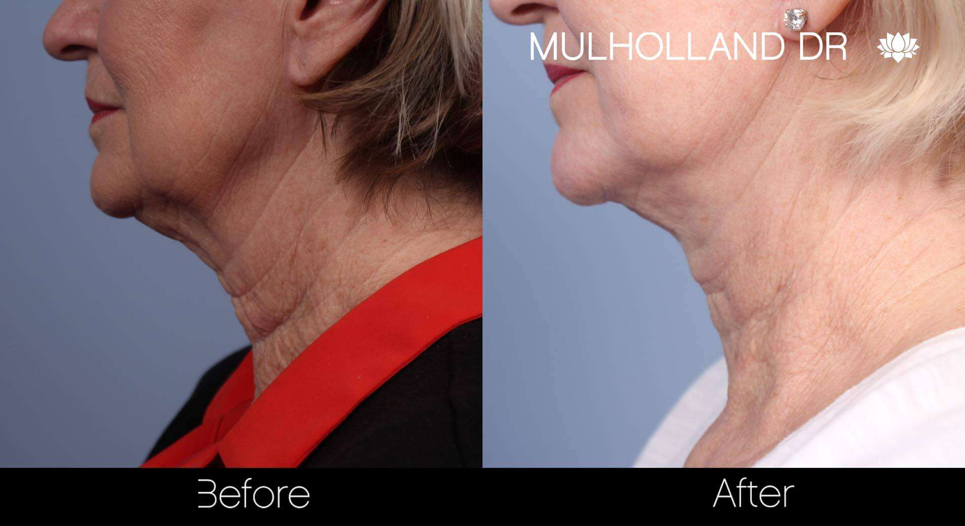 Neck Lift- Before and After Gallery – Photo 71