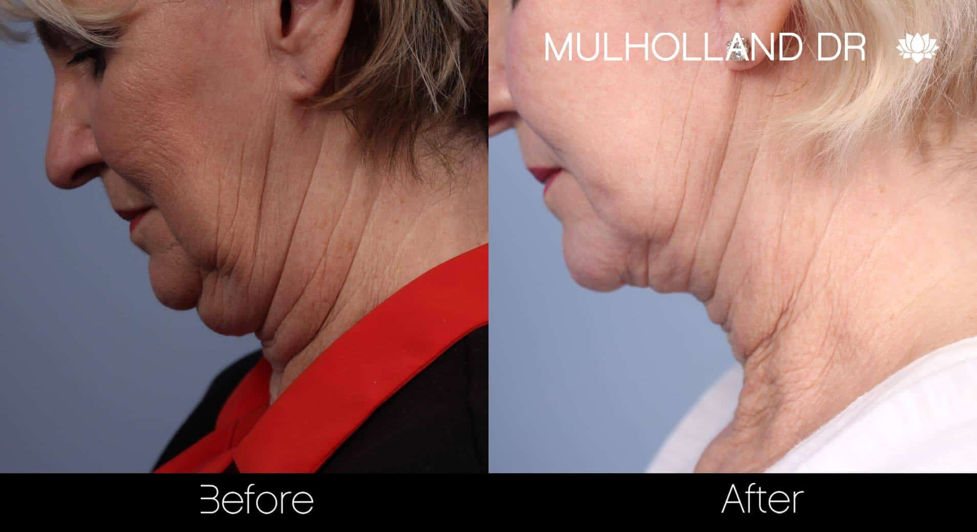 Neck Lift- Before and After Gallery – Photo 72