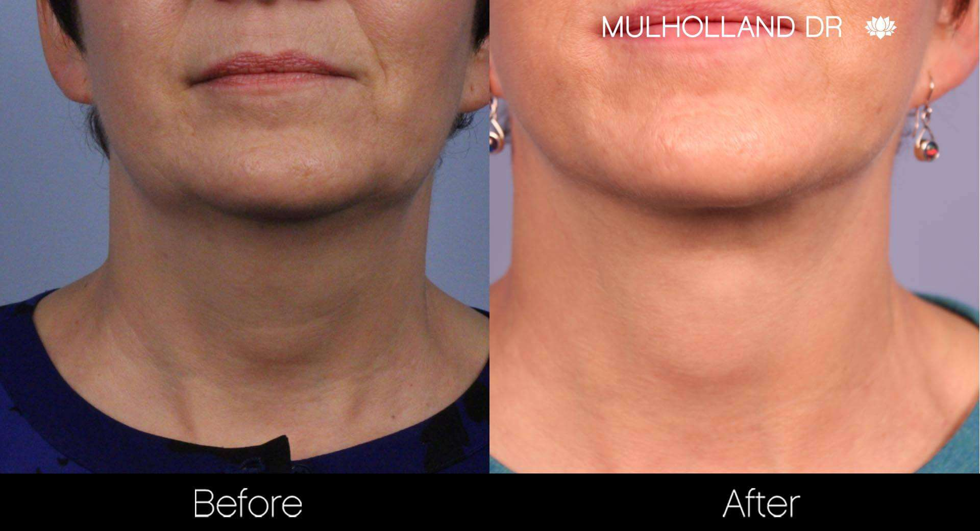Neck Lift- Before and After Gallery – Photo 73