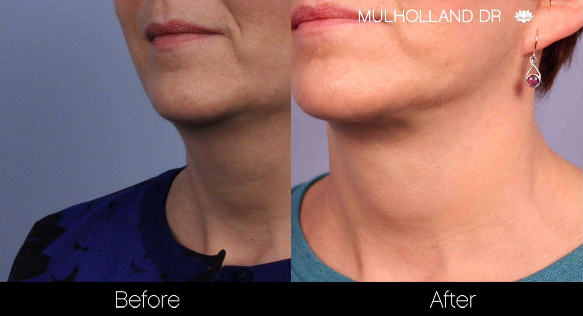 Neck Lift- Before and After Gallery – Photo 74