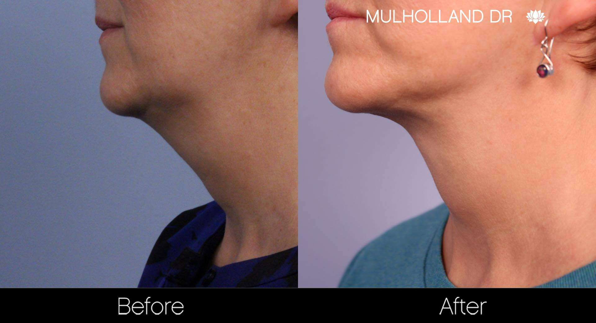 Neck Lift- Before and After Gallery – Photo 75