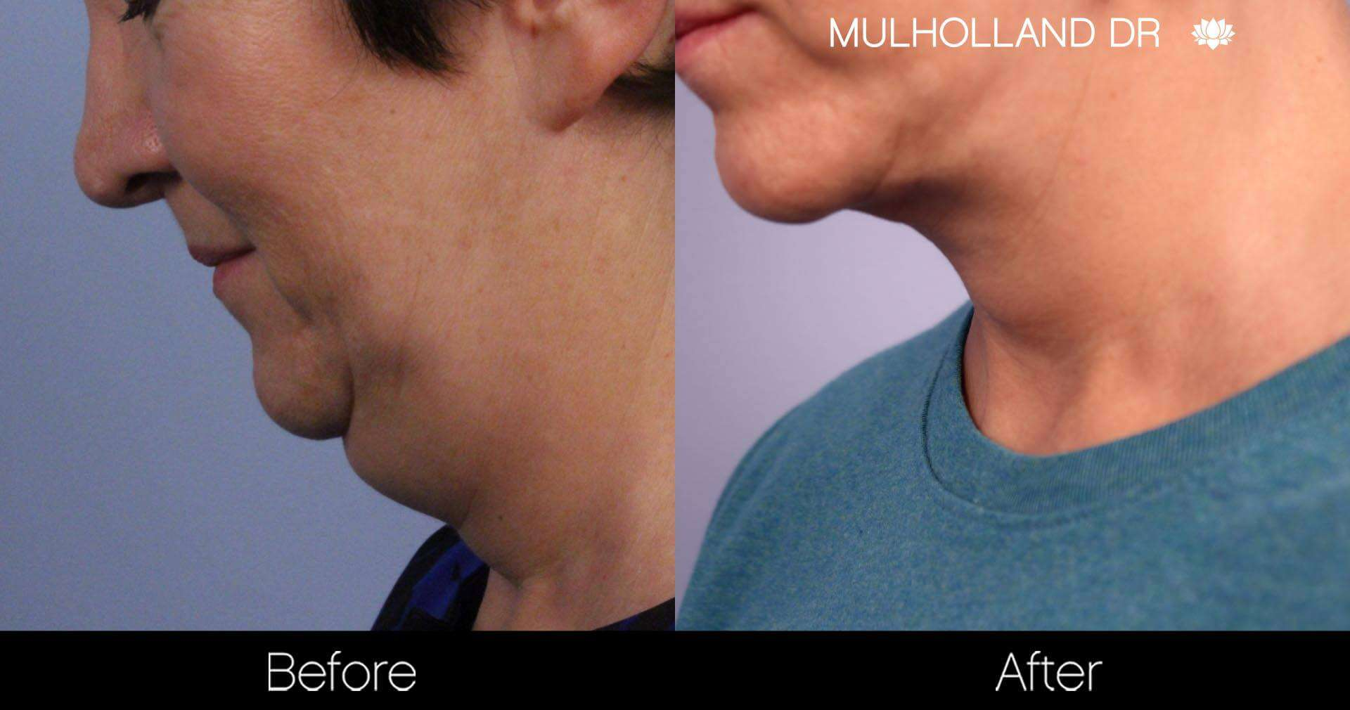 Neck Lift- Before and After Gallery – Photo 76