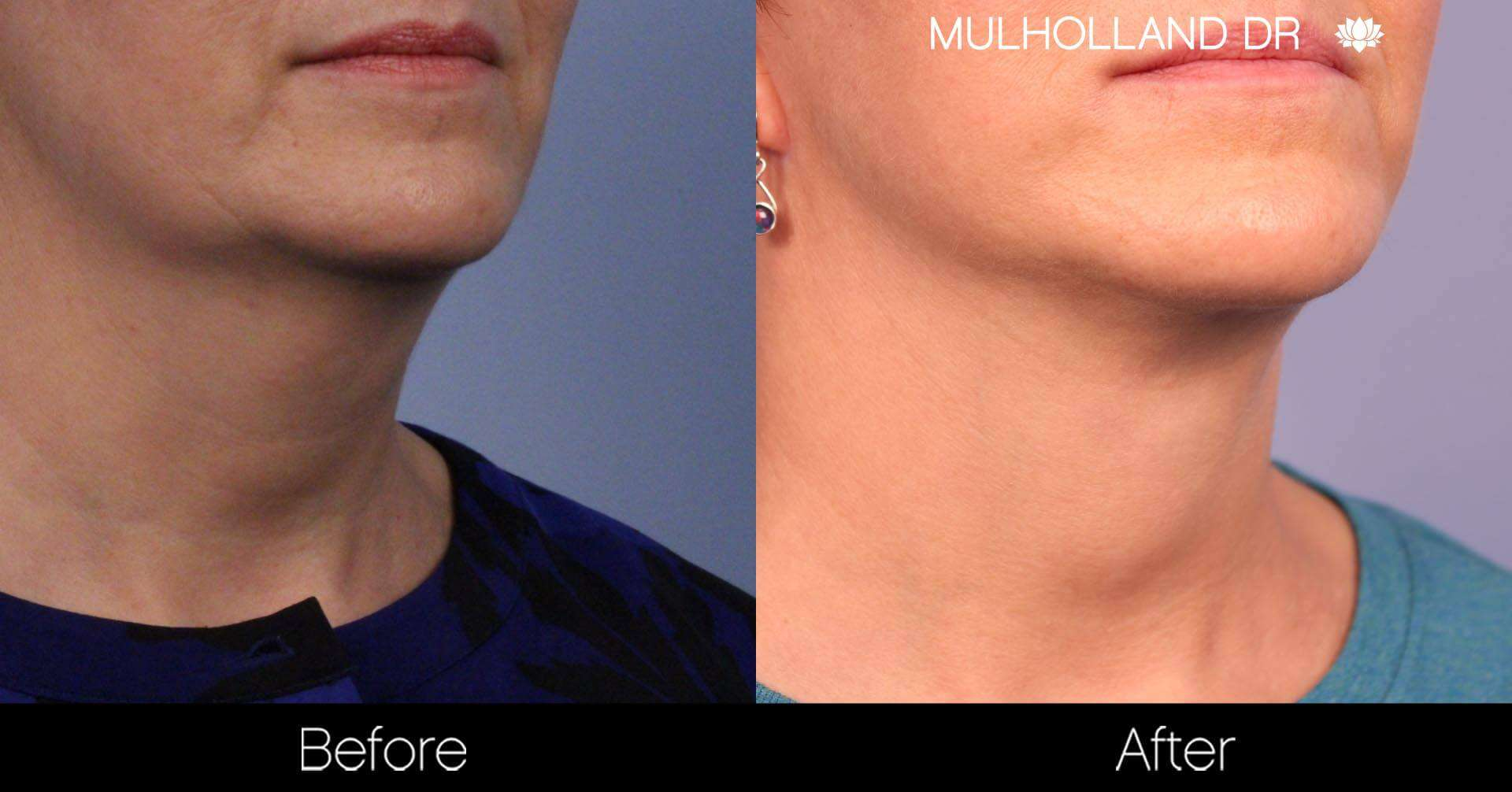 Neck Lift- Before and After Gallery – Photo 77