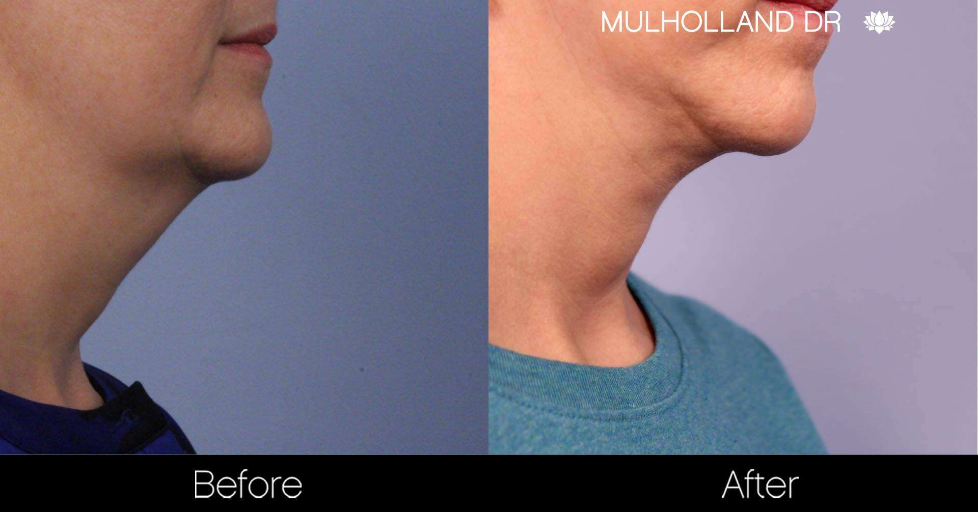 Neck Lift- Before and After Gallery – Photo 78