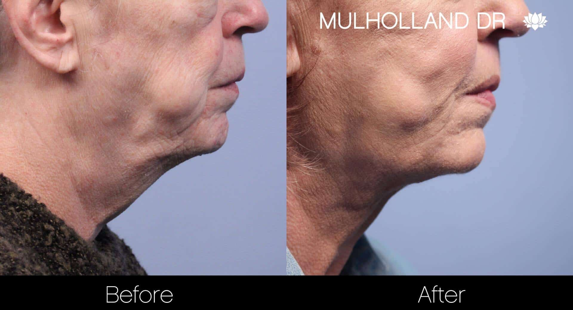Neck Lift- Before and After Gallery – Photo 79