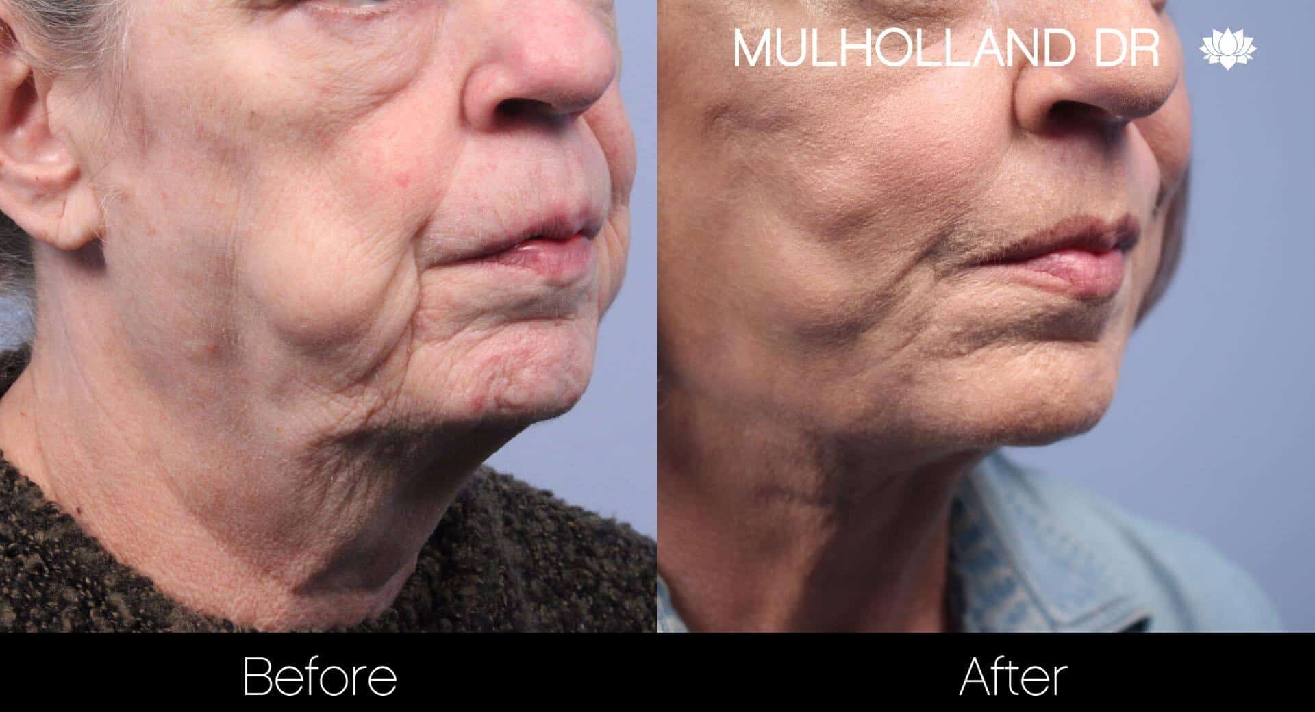 Neck Lift- Before and After Gallery – Photo 80