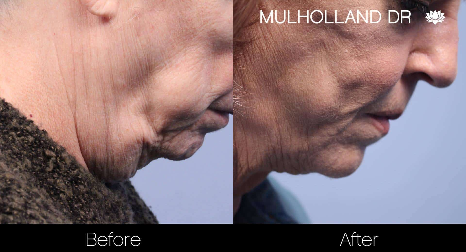 Neck Lift- Before and After Gallery – Photo 81
