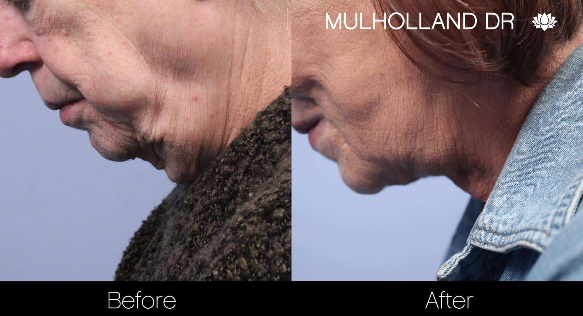 Neck Lift- Before and After Gallery – Photo 82