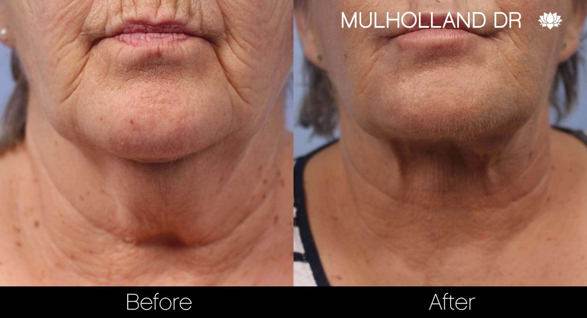 Neck Lift- Before and After Gallery – Photo 84