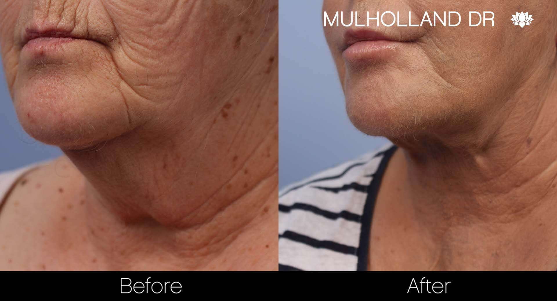 Neck Lift- Before and After Gallery – Photo 85