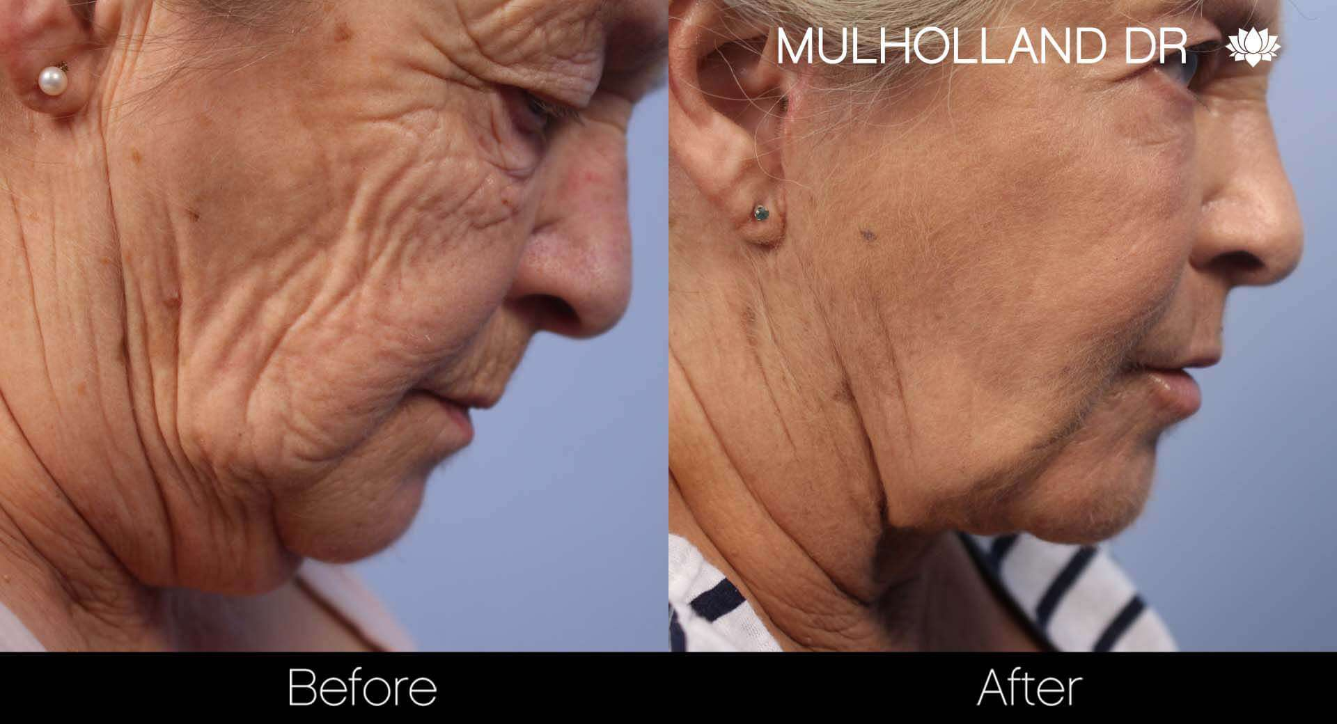 Neck Lift- Before and After Gallery – Photo 86