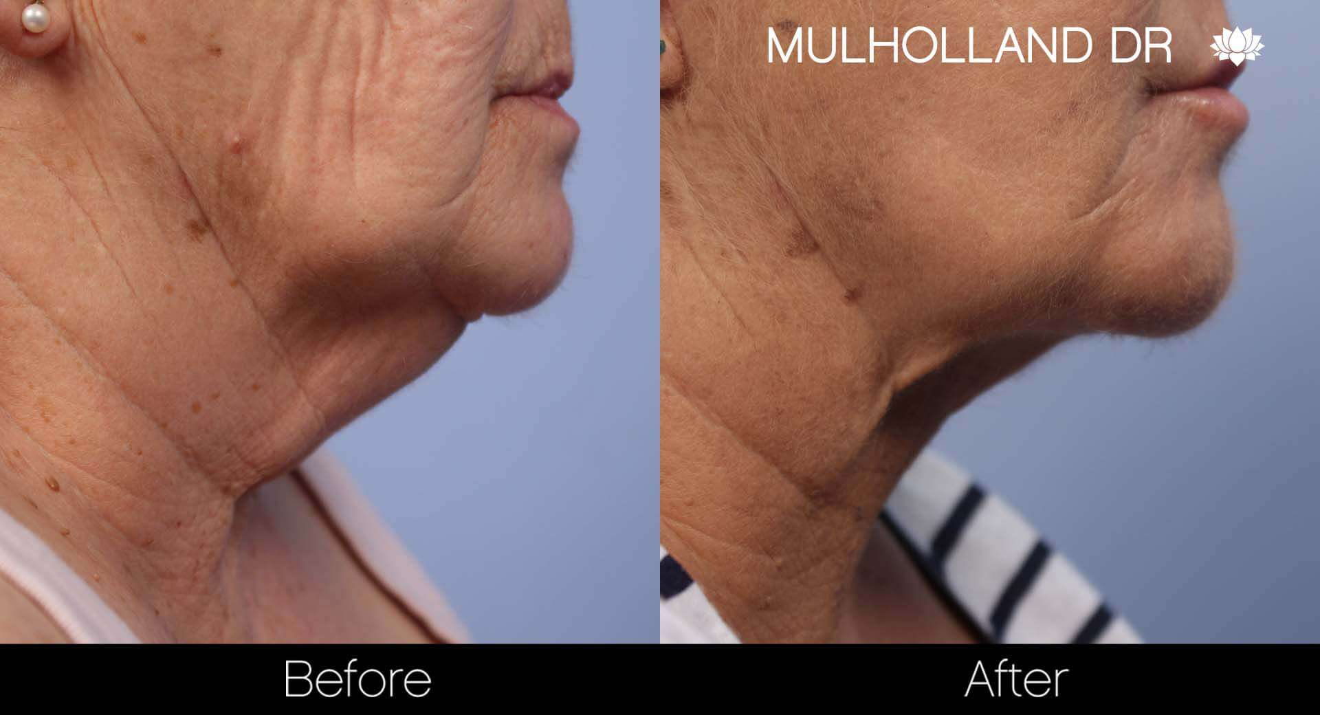 Neck Lift- Before and After Gallery – Photo 87