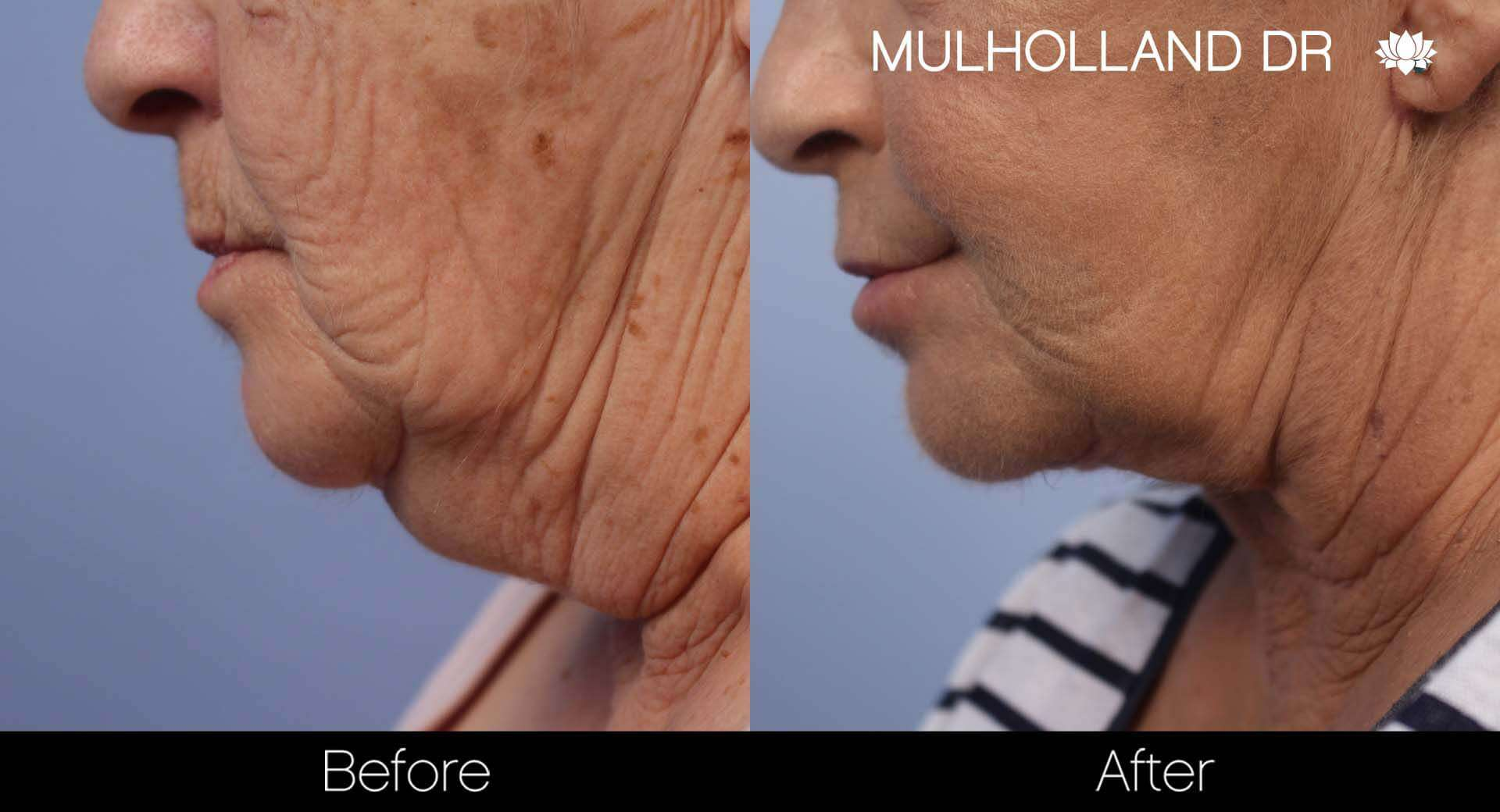 Neck Lift- Before and After Gallery – Photo 88