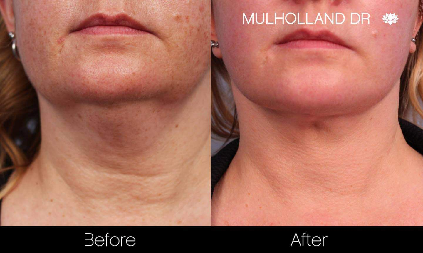 Neck Lift- Before and After Gallery – Photo 89