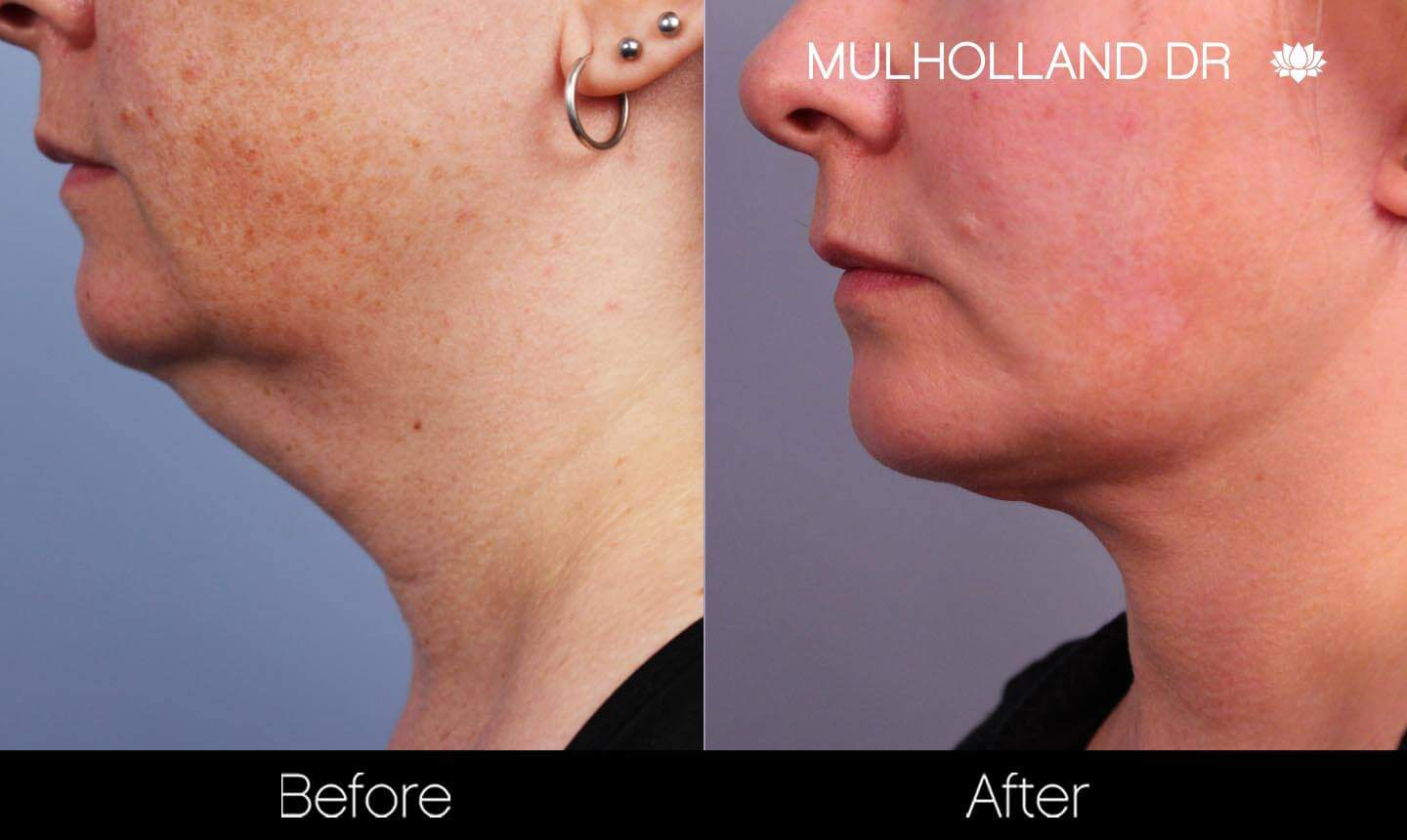 Neck Lift- Before and After Gallery – Photo 90