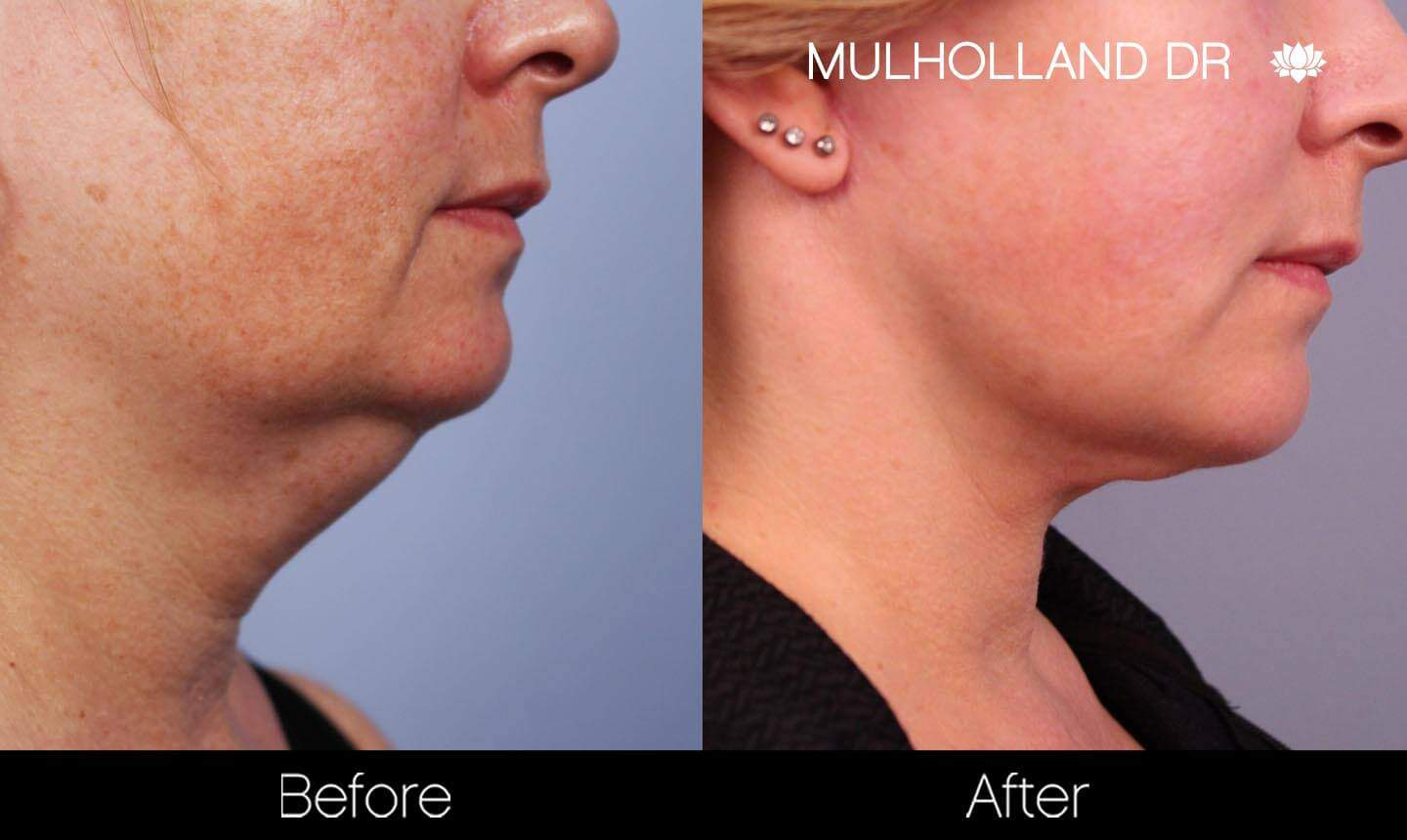 Neck Lift- Before and After Gallery – Photo 92