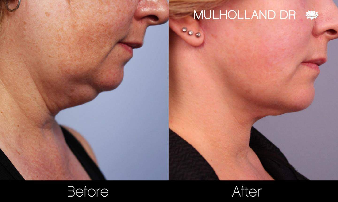 Neck Lift- Before and After Gallery – Photo 93