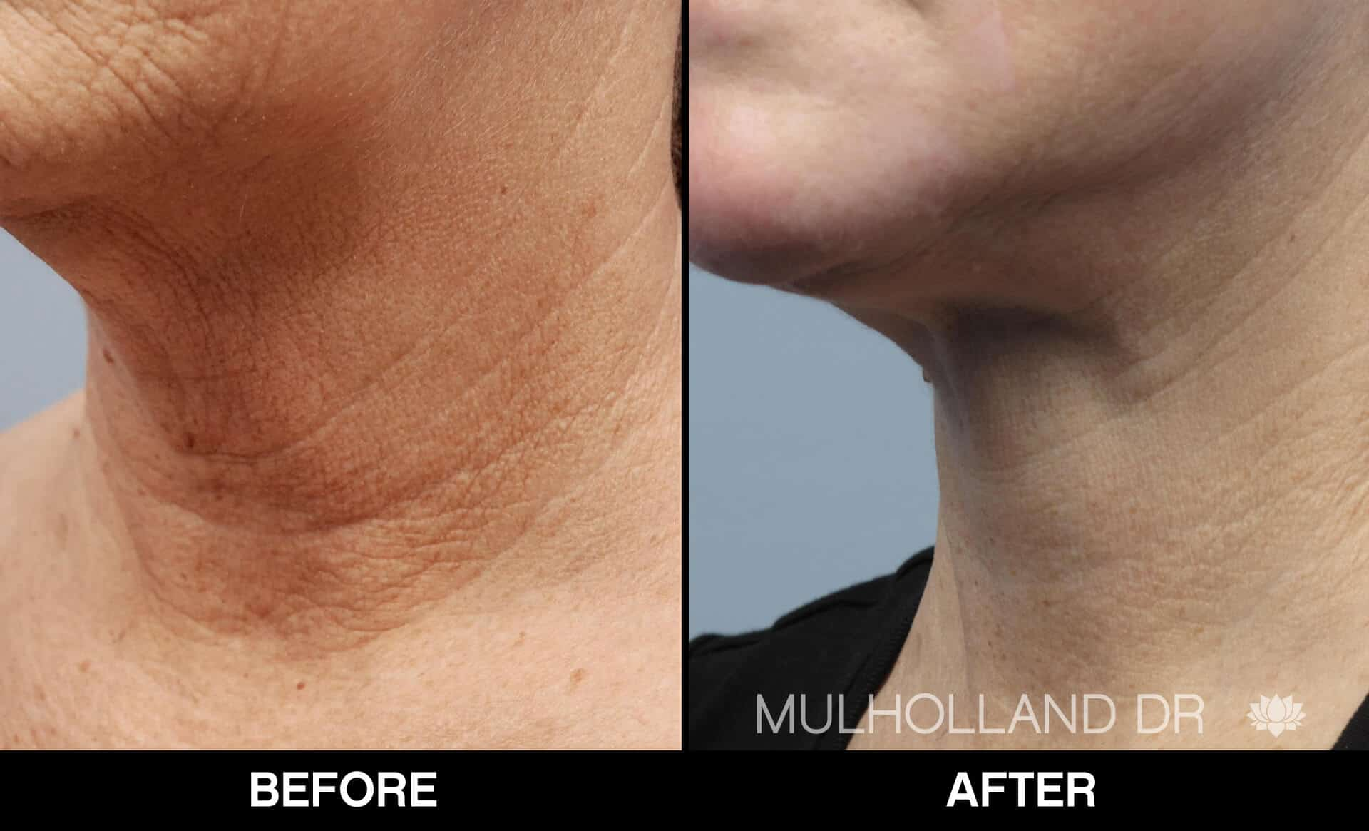 Neck Lift- Before and After Gallery – Photo 94