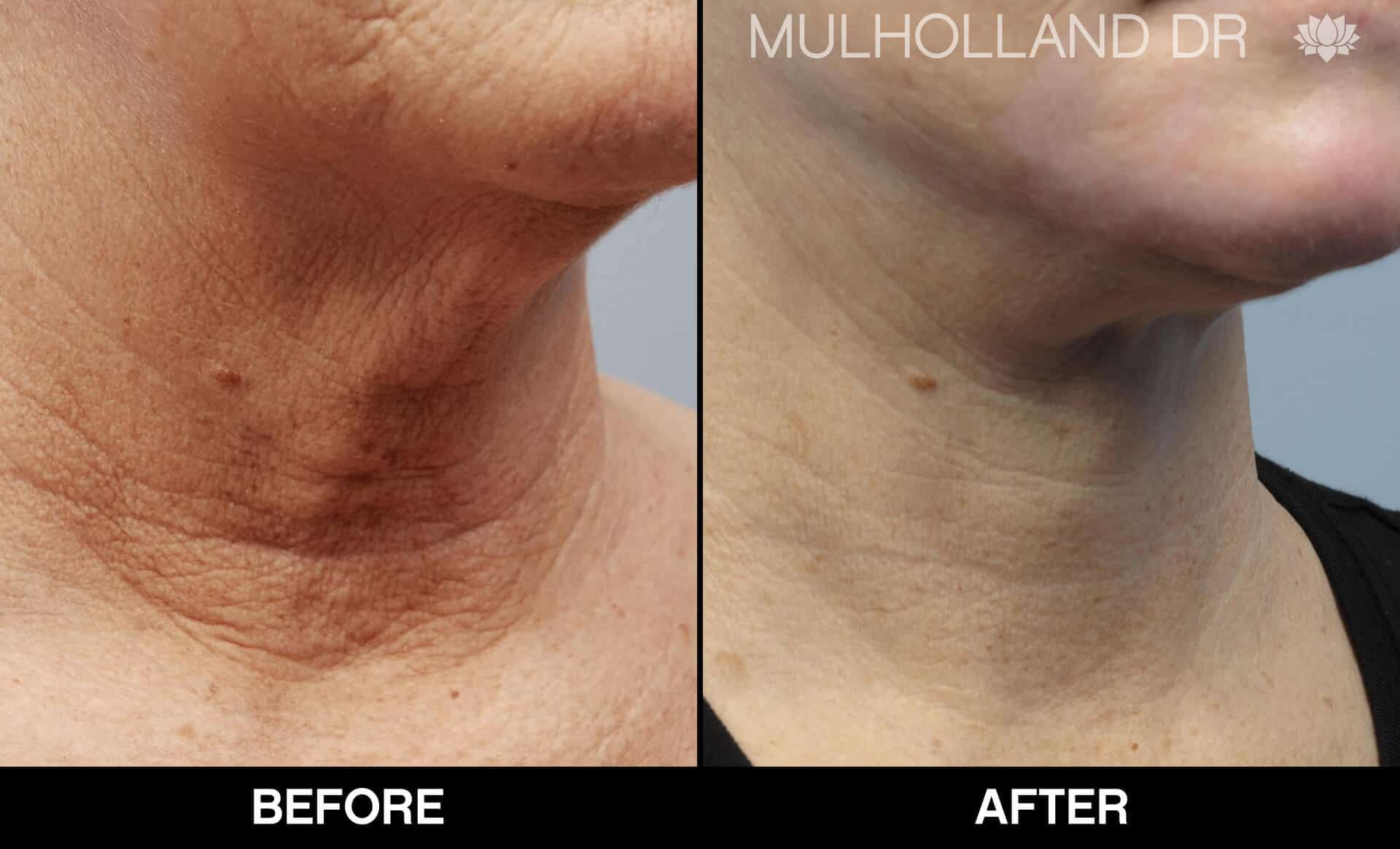 Neck Lift- Before and After Gallery – Photo 95