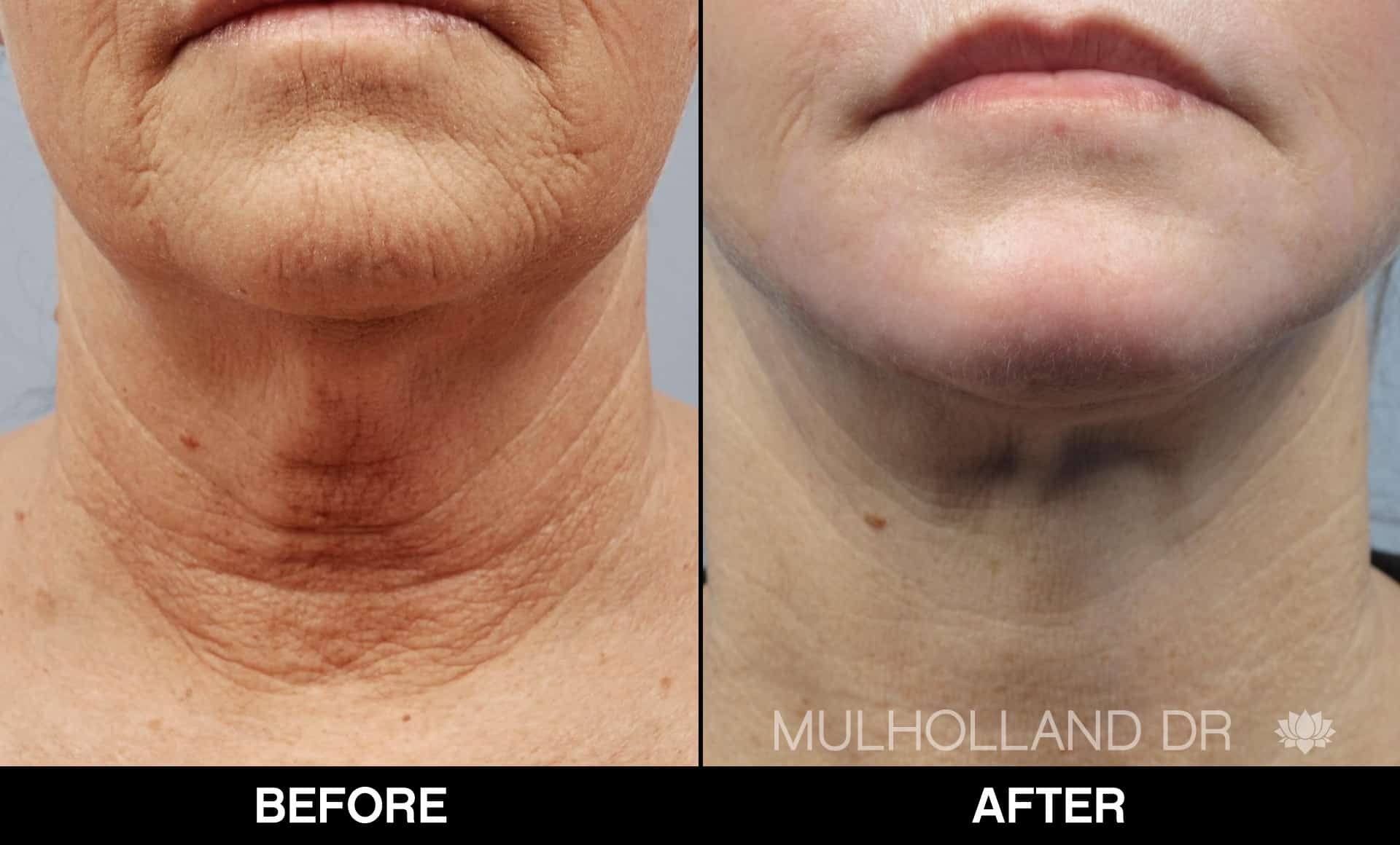 Neck Lift- Before and After Gallery – Photo 96