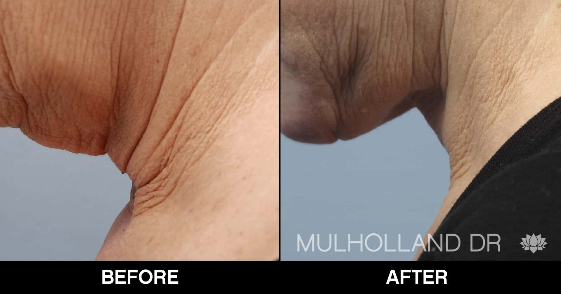Neck Lift- Before and After Gallery – Photo 98