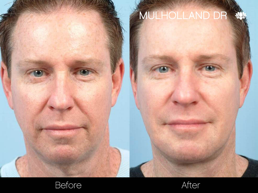 Male Liposuction - Before and After Gallery – Photo 13