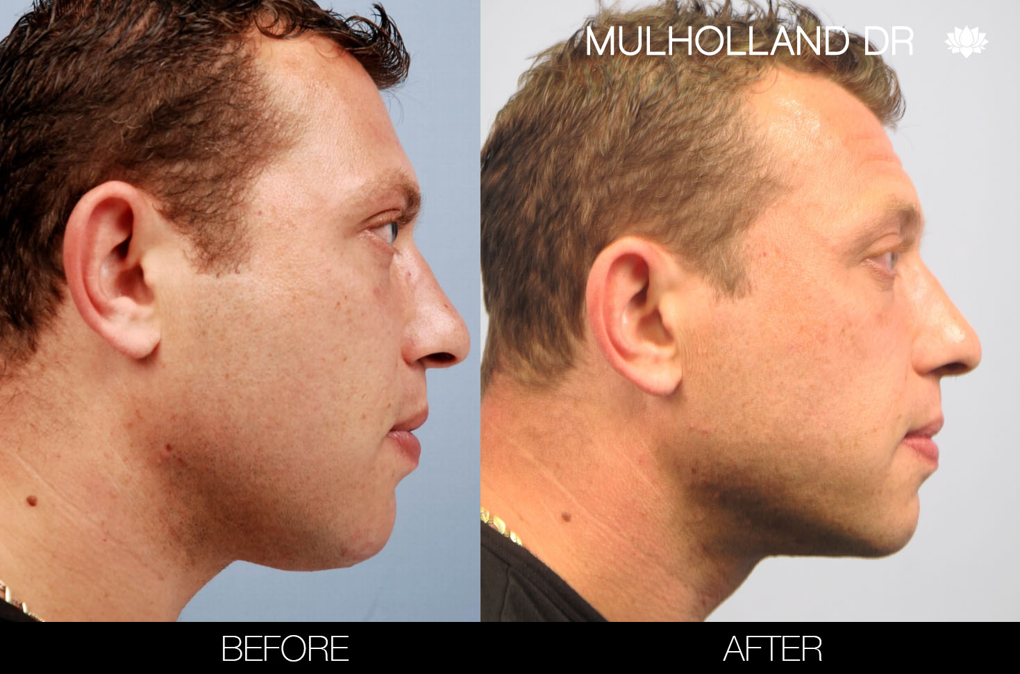 Male Liposuction - Before and After Gallery – Photo 19