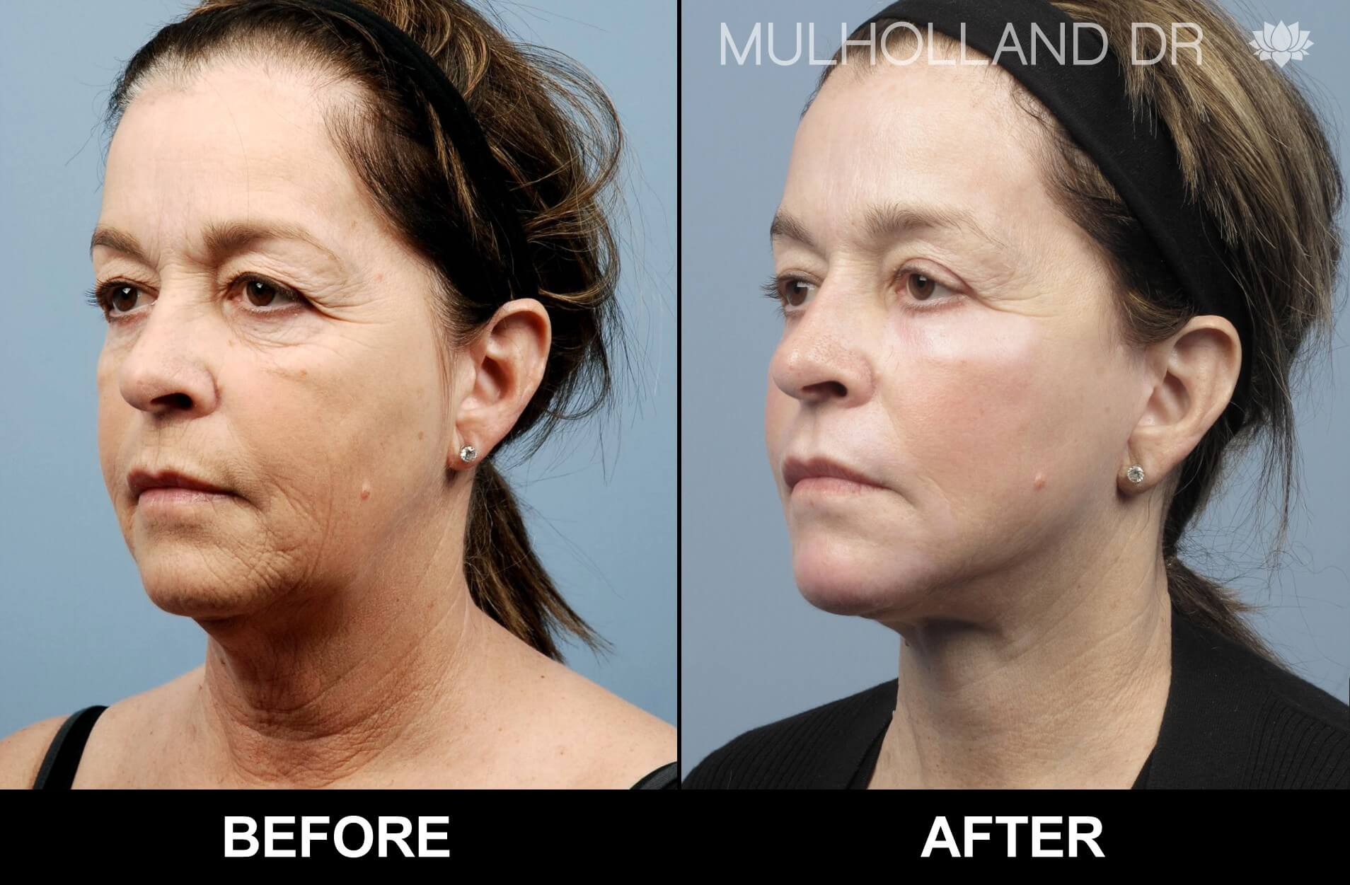 Fractora - Before and After Gallery – Photo 49