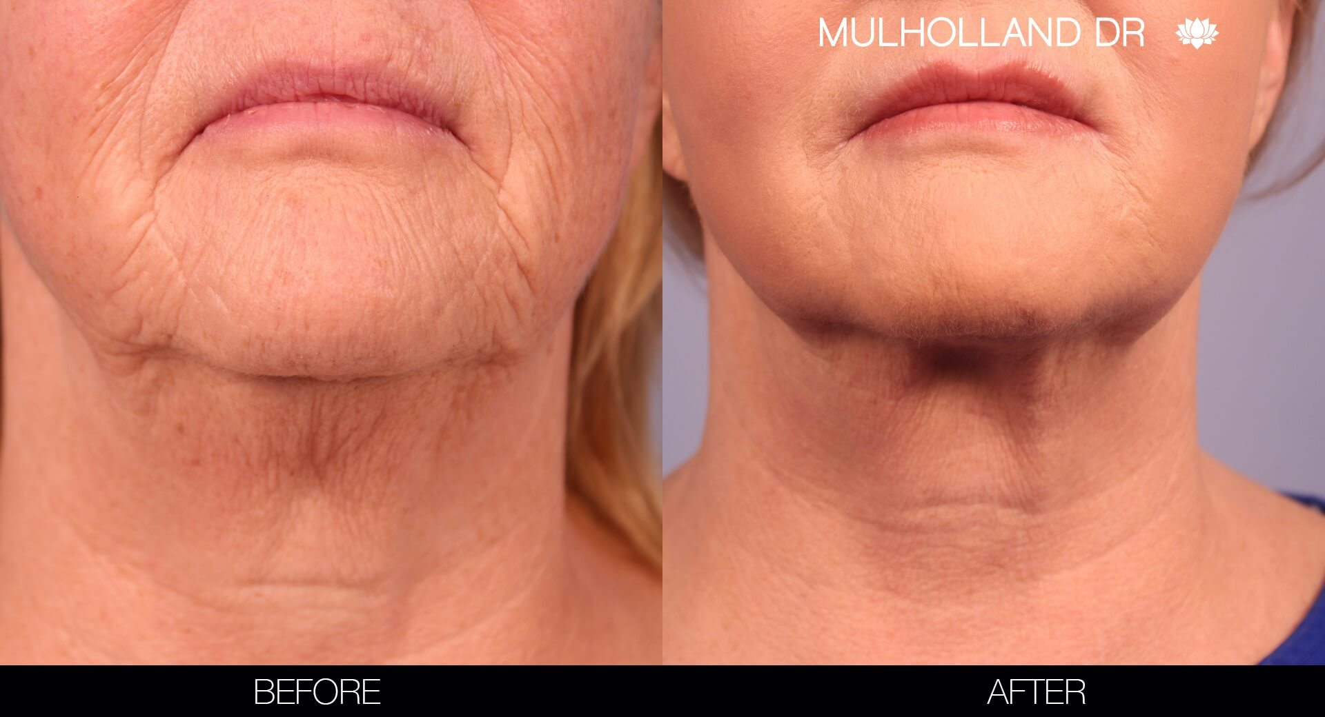 Fractora - Before and After Gallery – Photo 38
