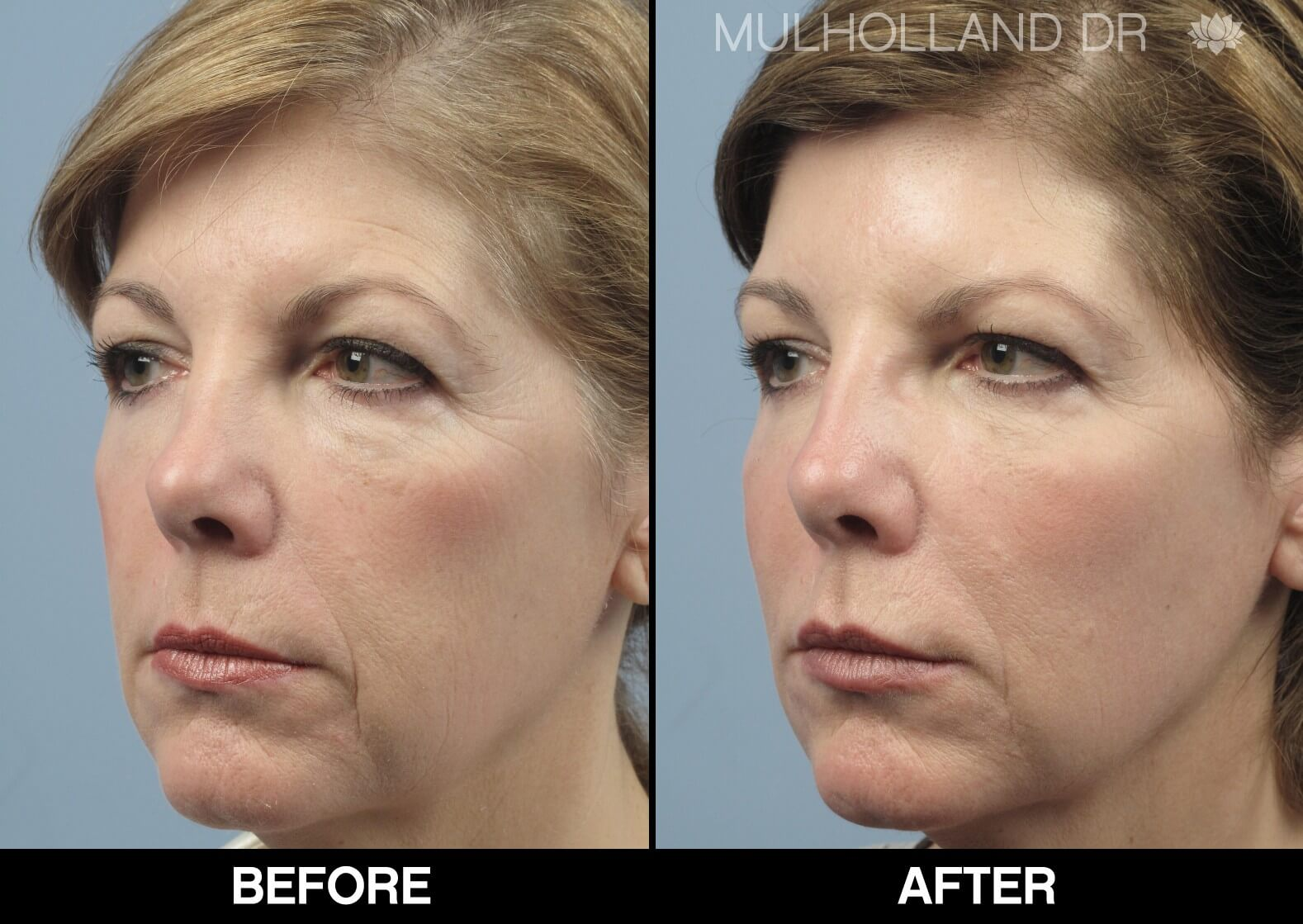 Fractora - Before and After Gallery – Photo 72