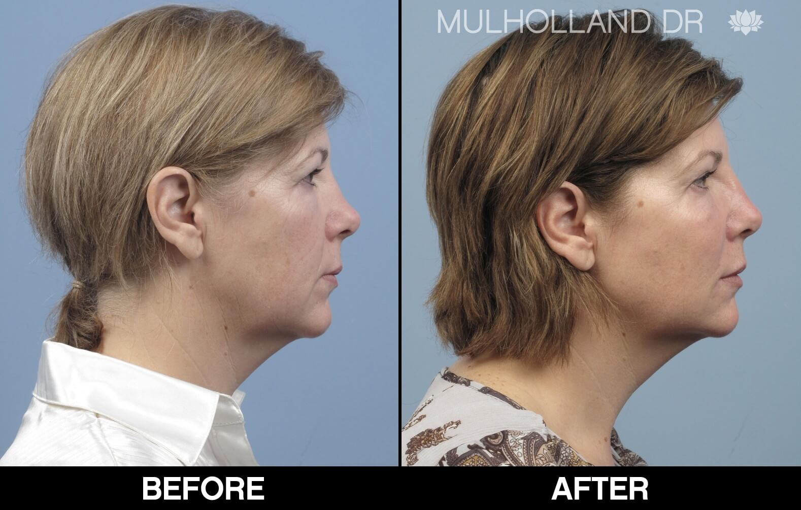Fractora - Before and After Gallery – Photo 83