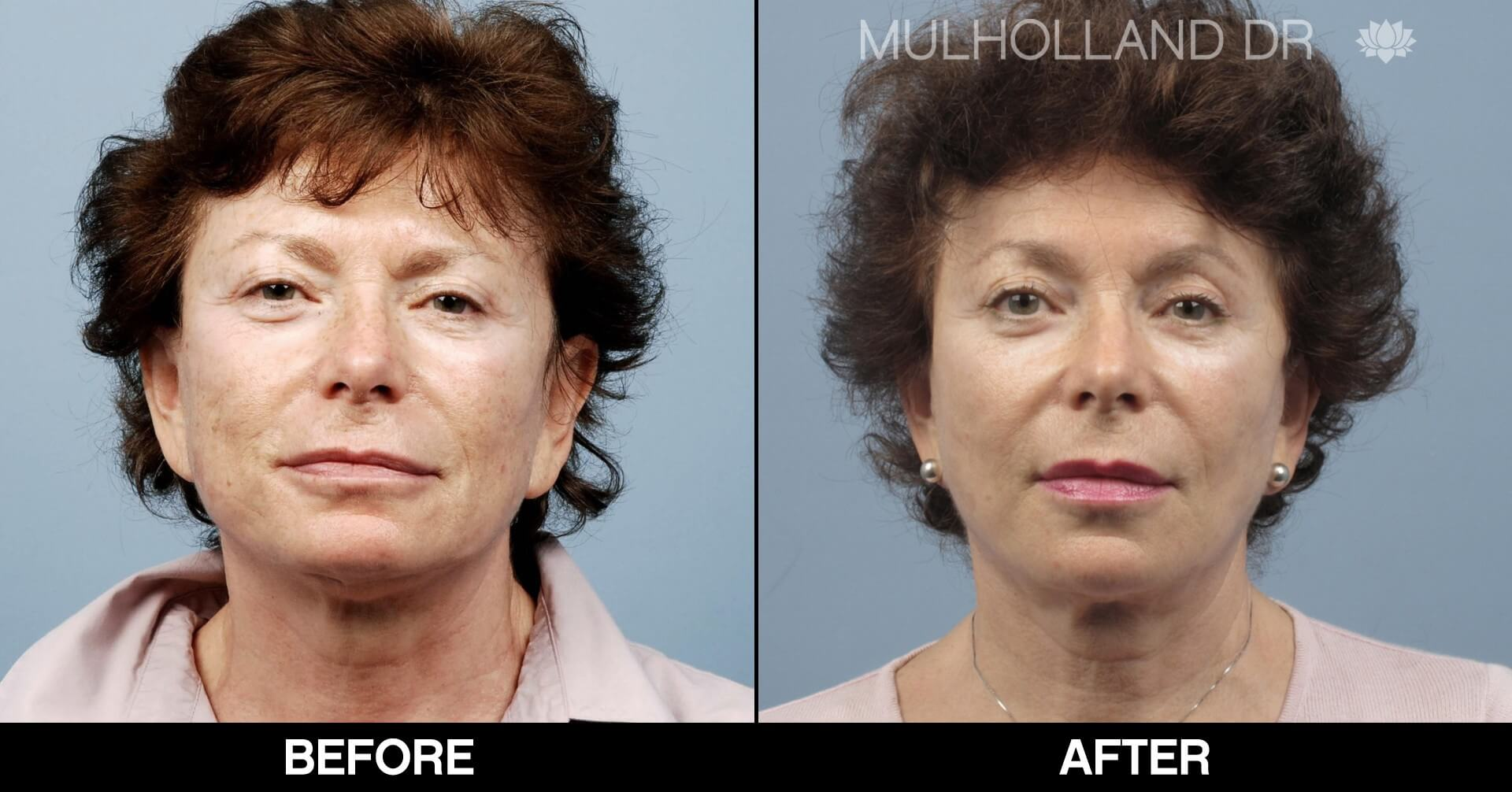 Fractora - Before and After Gallery – Photo 56