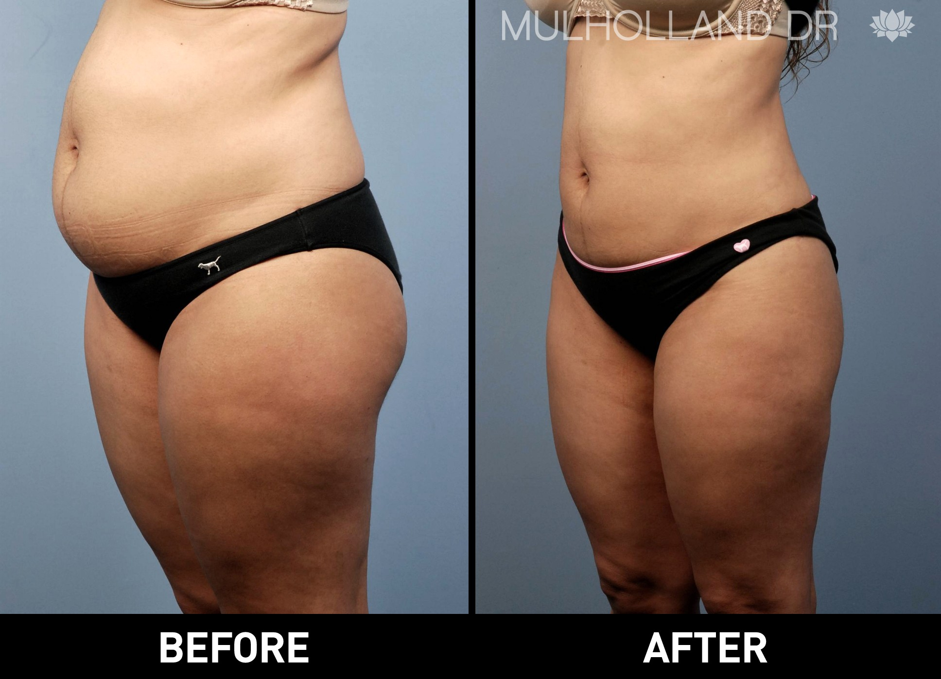 Liposuction - Before and After Gallery – Photo 14