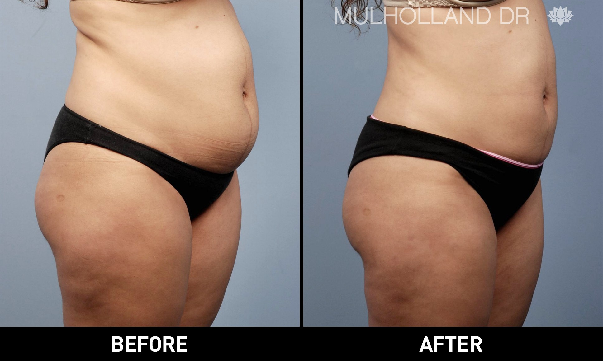 Liposuction - Before and After Gallery – Photo 15