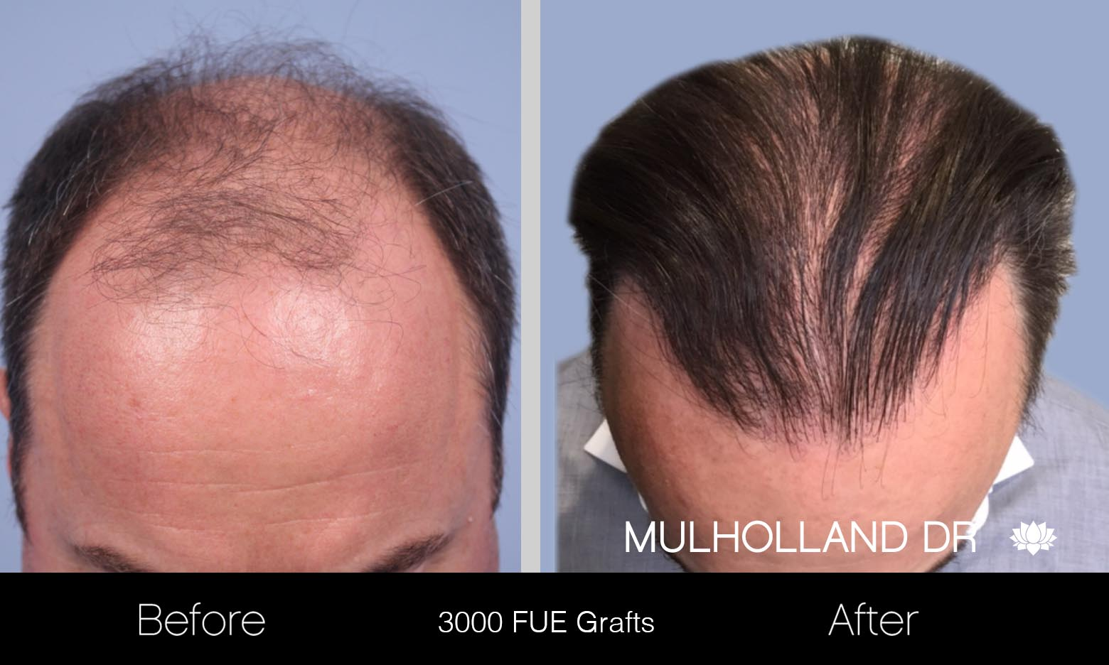 FUE Hair Male - Before and After Gallery – Photo 16