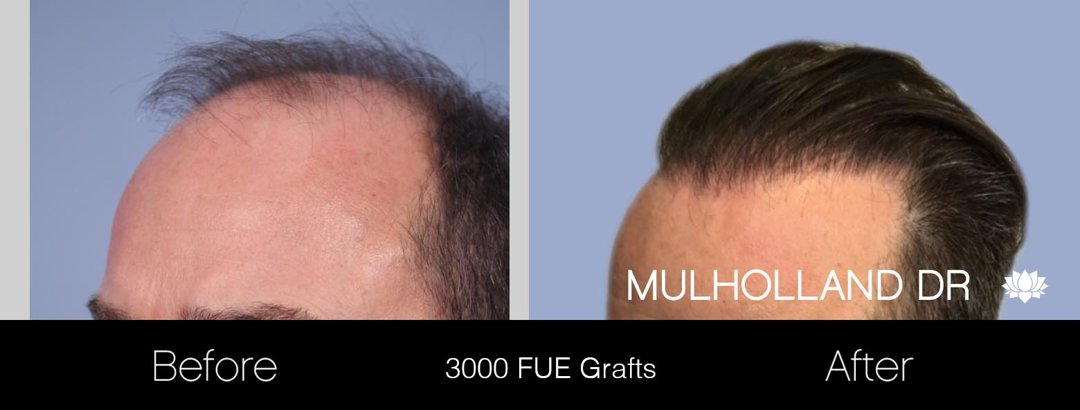 FUE Hair Male - Before and After Gallery – Photo 17