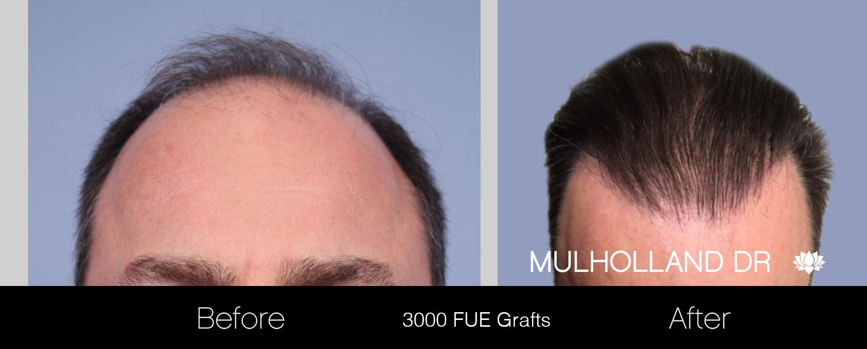 FUE Hair Male - Before and After Gallery – Photo 18