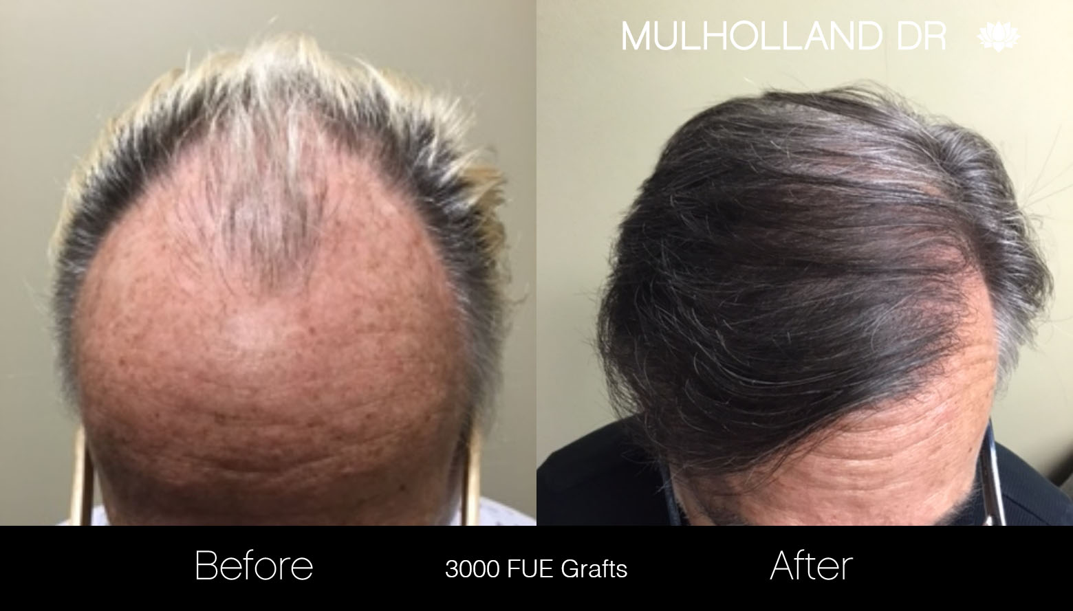 FUE Hair Male - Before and After Gallery – Photo 27