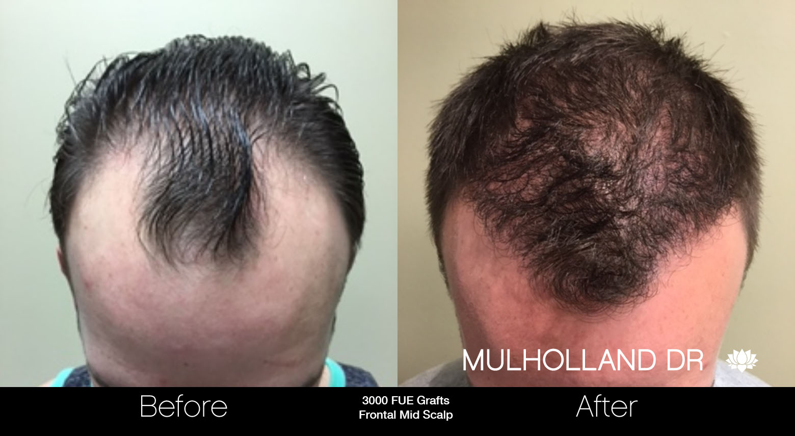 FUE Hair Male - Before and After Gallery – Photo 19