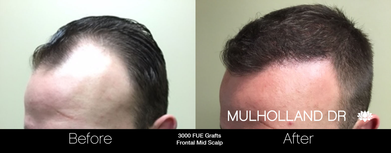 FUE Hair Male - Before and After Gallery – Photo 20