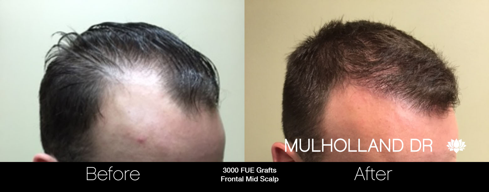 FUE Hair Male - Before and After Gallery – Photo 21