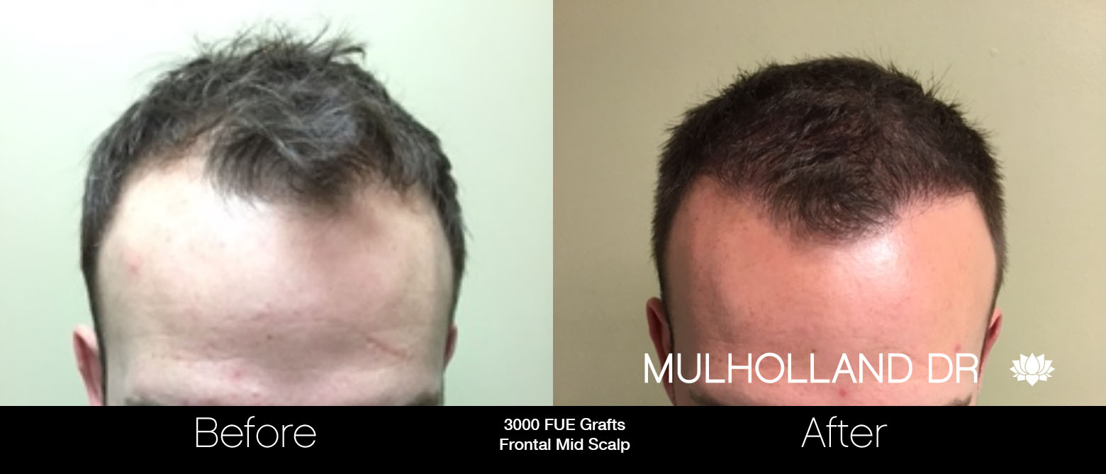 FUE Hair Male - Before and After Gallery – Photo 22