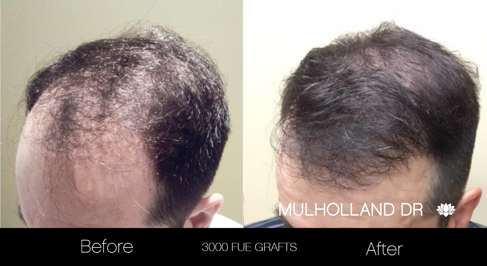 FUE Hair Male - Before and After Gallery – Photo 23